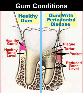 Gum Disease Treatment in Heber Springs